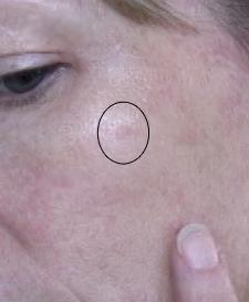 Sunscreen Skin Cancer Hotandflashy Com