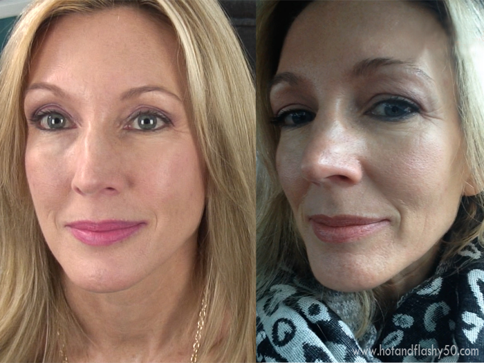 My Experience With Filler (Juvederm) & Botox
