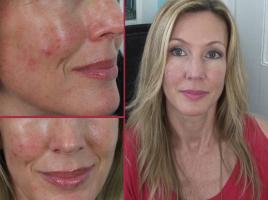 Skincare Clear Skin Thumb