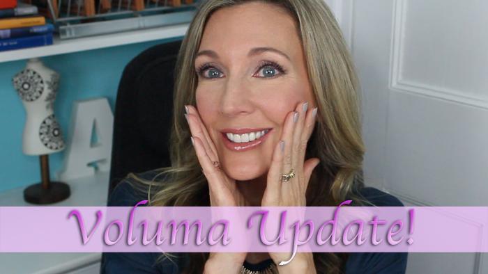 Voluma Cheek Filler   One Year Update!