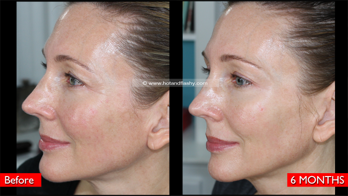Fraxel Dual Laser 6-Month Update | Before & After