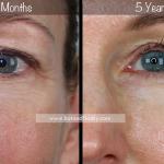 Front Face Close Up 2 BA Pic 9 mo to 5 Yrs