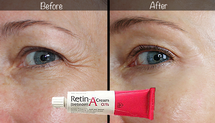 5-Year Retin-A Results ~ Before & After for Wrinkles & Anti