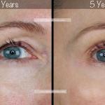 Three Quarter Face Eye Close Up BA 3 Years to 5 Yrs