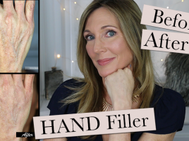 Hand Filler Thumb