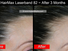 HairMax 3 Mo Right Side B&A