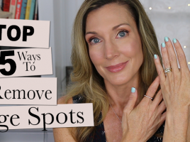 Top 5 Remove Age spots Hands