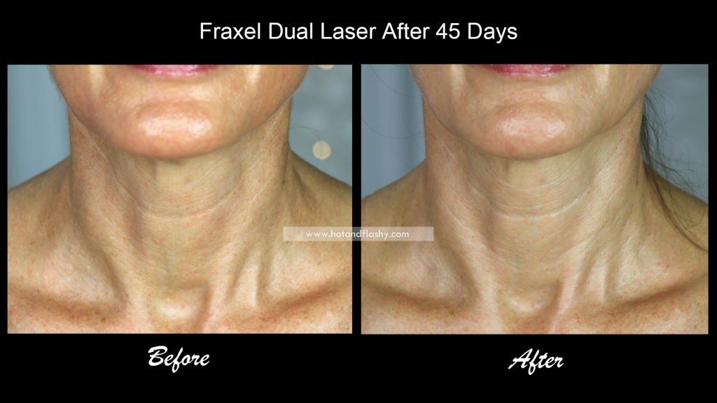 Fraxel Dual Laser Treatment for Sun Damage | Chest + Neck | Before
